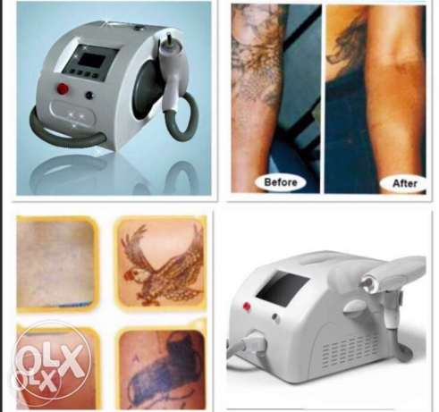 for sale and for rent removal tattoo best price